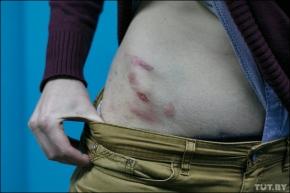 TUT.BY подсчитал: За последние 10 лет журналистов в Беларуси избивали больше 30раз
